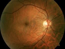 Glaucomapix